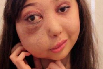 На 6 г. й поставиха страшна диагноза! Това, което постигна буквално просълзява… (СНИМКИ/ВИДЕО)