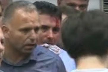 В Македония напрежението ескалира: Окървавеният Зоран Заев изригна мощно: Това бе опит за убийство!