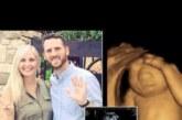 Тази майка направи немислимото, след като лекарите й казаха, че бебето й няма мозък и няма шанс да оцелее