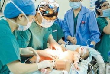 Разделиха успешно 3-месечни сиамски близнаци