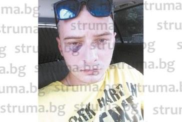 """Петрички лекари размотават абитуриент, ранен в двойно меле, при чекирането му за прием в благоевградска болница се оказа, че се води на лечение в МБАЛ """"Рокфелер"""""""