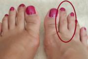 Погледнете пръста си! Ако забележите това, краката ви търсят помощ