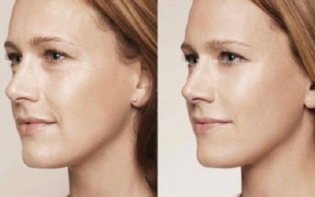 Ако имате бръчки на лицето, опитайте тази проста маска, която прави чудеса