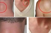 3-те най добри начина за премахване мастна тъкан от главата, ръцете, гърба, шията, краката