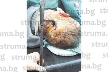 Хирурзи извадиха 10-см метален шип от черепа на перничанин, животът му вън от опасност