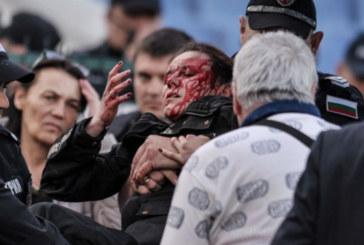 Ранената полицайка се бори за зрението си