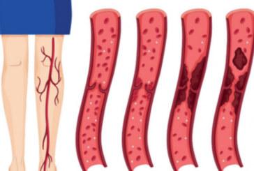 8 симптома, които ви алармират, че имате кръвен съсирек и спешно трябва да вземете мерки!