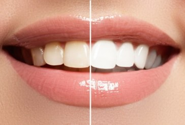 Развалените зъби водят до голяма опасност