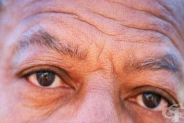 Дълбоките бръчки на челото разкриват риск за здравето
