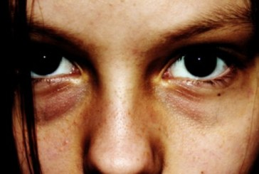 6 причини за сенки под очите