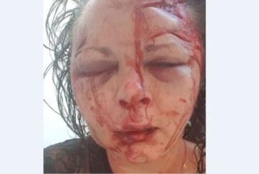 Млада жена отказа секс, извратенякът я обезобрази