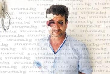 Произвол на хора под пагон! Санданчанинът Г. Андонов: Полицаи ме смазаха от бой, ритаха ме с кубинки в главата след гонка из целия град, признавам, че бях пил, но да ме убият ли трябва?
