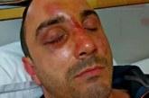 Роми пребиха и ограбиха студент, разбиха къщата на баба му