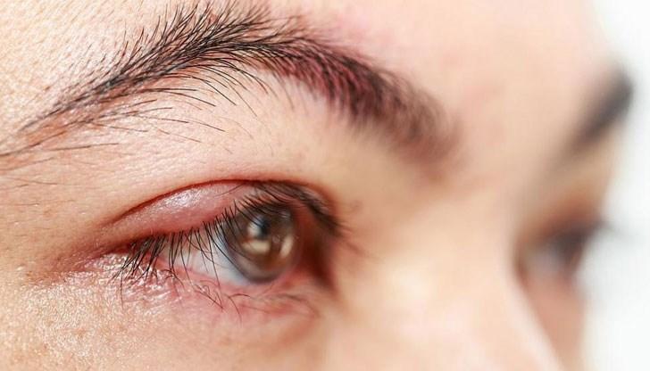 5 бабини лека срещу ечемик на окото