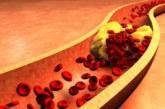 Продуктите, които намаляват лошия холестерол