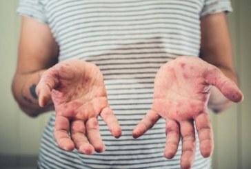 Нови случаи на морбили, заразените станаха 31