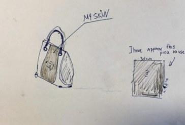 Британка дава 3000 паунда: От ампутирания ми крак искам чанта!