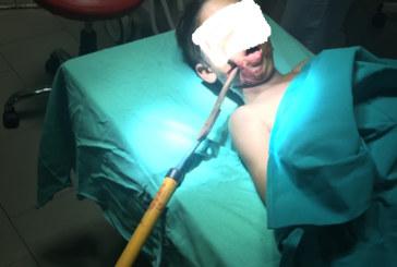 7-г. момче със забита в главата градинска ножица шокира лекарите