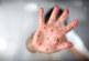 Само за седмица: 25 нови случая на морбили в Кюстендилско