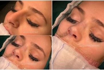 Снимка на Преслава от операционната маса плъзна в интернет пространството