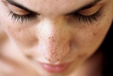 10 натурални продукта, които премахват пигментните петна