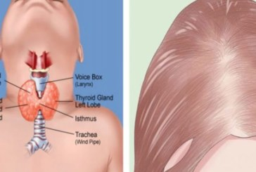 Ето как да разберете имате ли проблем с щитовидната жлеза!