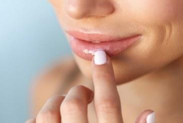 8 неща, които устните издават за здравето ви