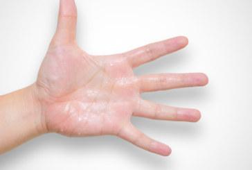 Извършиха първата в света трансплантация на ръка от жив донор