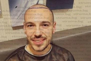 Благоевградският зет Даниел Петканов си присади коса в Турция