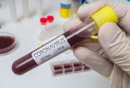 Нови 5 заразени с COVID-19 у нас, единият в Благоевград