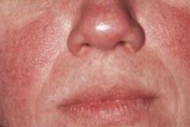 Лицето може да издава признаци на опасно заболяване