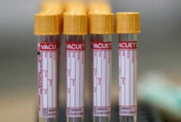 СЗО: 60% от заразените с COVID-19 са регистрирани през последния месец