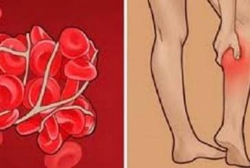 7 признака, че имате тромб