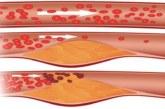 Ето ги полезните нива на холестерола