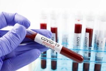 COVID-19 оставя следи в органите на преболедували млади хора